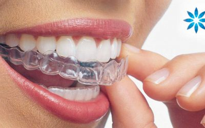 Huntington Beach Invisalign Preferred Provider