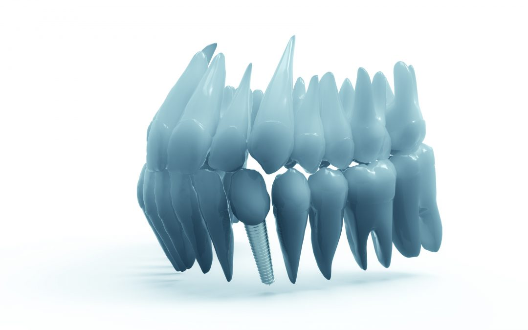 Huntington Beach Dental Implants