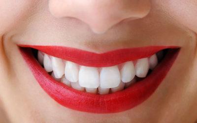 Teeth Cleanings in Huntington Beach